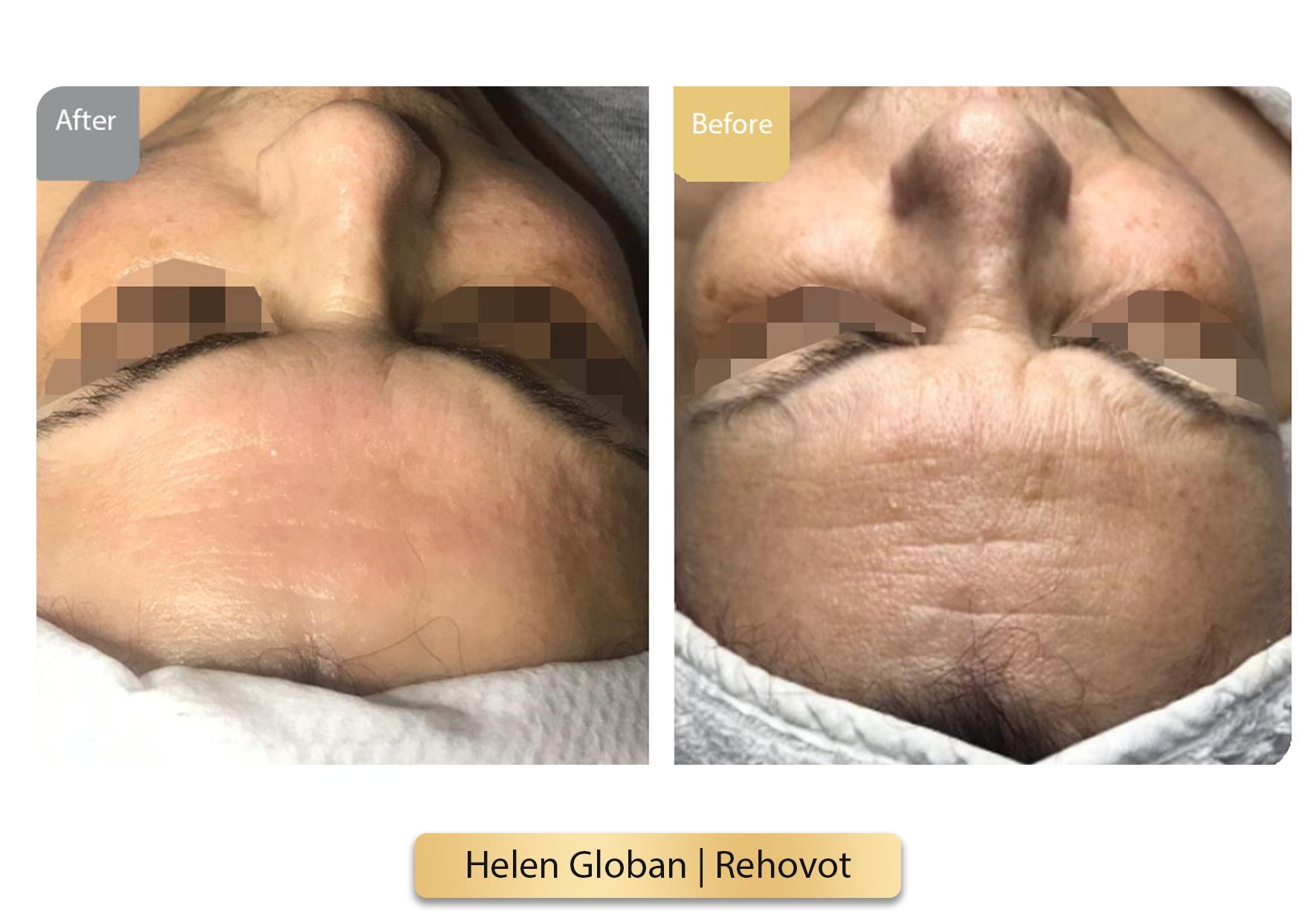 Helen Globan  Rehovot