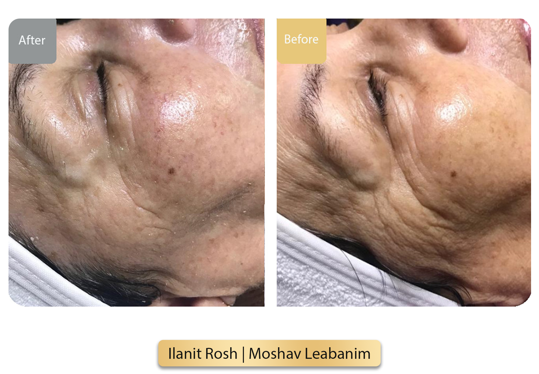Ilanit Rosh  Moshav Leabanim