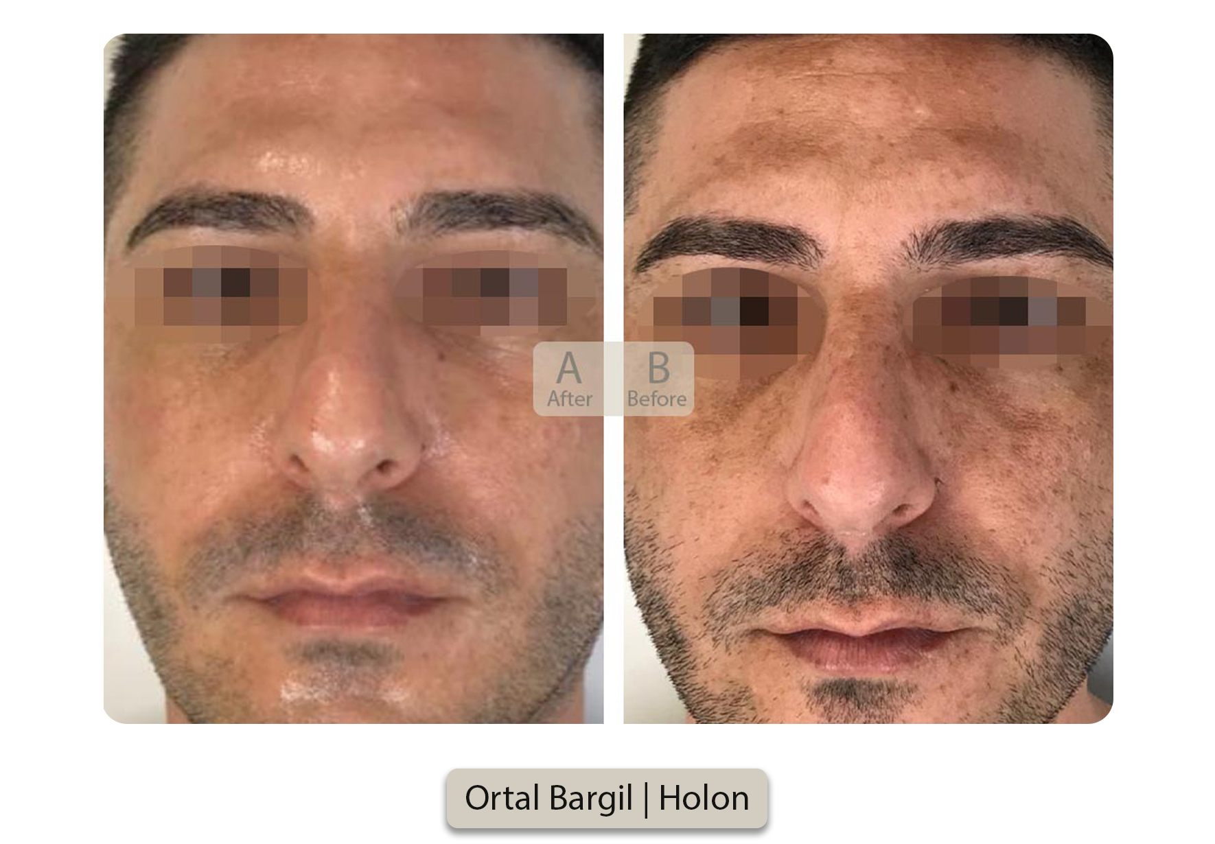 Ortal Bargil  Holon [2]