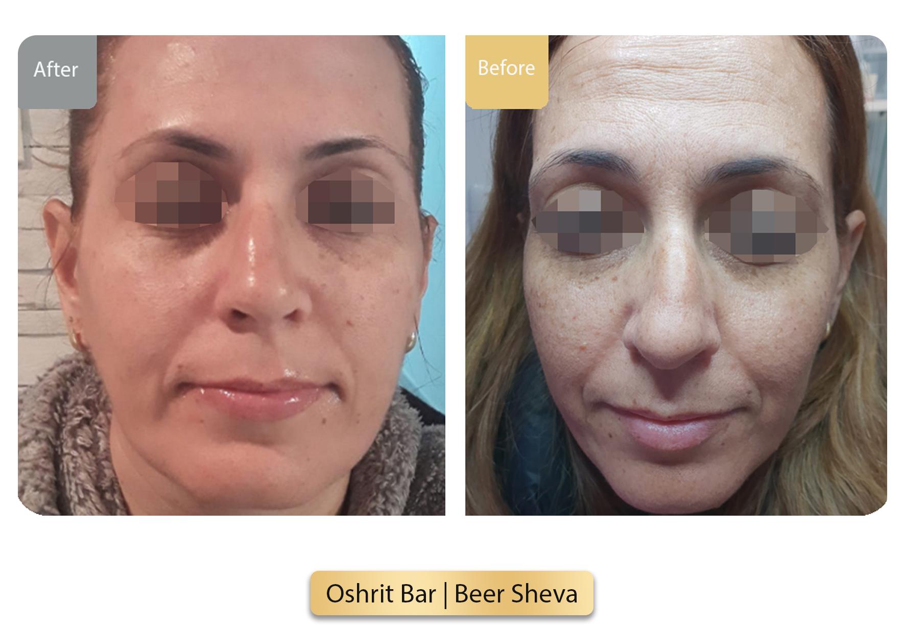Oshrit Bar  Beer Sheva